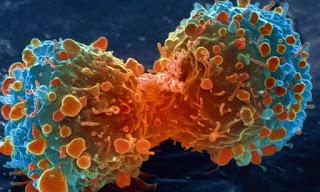 Jenis-jenis penyakit kanker, cara mencegah, serta pengobatannya
