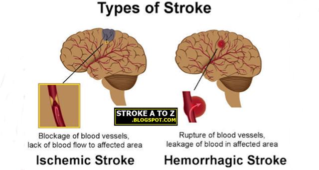 Jenis-jenis Penyakit Stroke