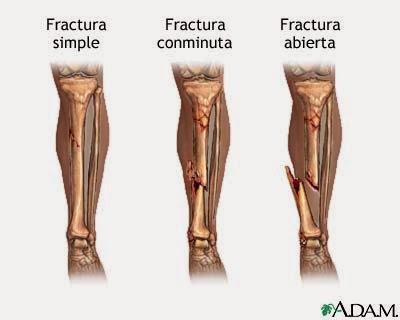 lesiones musculares y oseas
