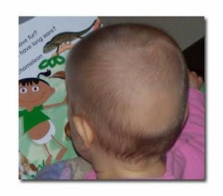Hair and Scalp Concerns