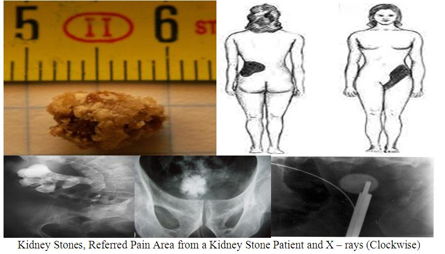 Pharmacy And Health Can Too Much Vitamin C Cause Kidney