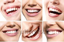 Gigi Sehat, Senyum Pun Indah Menawan Bersama Global Estetik