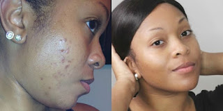 Best Acne Spot Remover for Black Skin