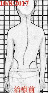脊椎側彎, 脊椎側彎背架, 脊椎度數,脊椎側彎矯正, 脊椎側彎治療