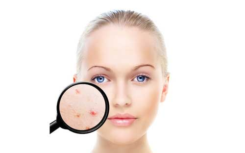 Cara merawat wajah berjerawat secara alami dan gampang yang sanggup anda terapkan di rumah 10 Cara merawat wajah berjerawat secara alami dan mudah