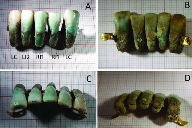 Dental prosthesis made of human teeth discovered in medieval Italian tomb