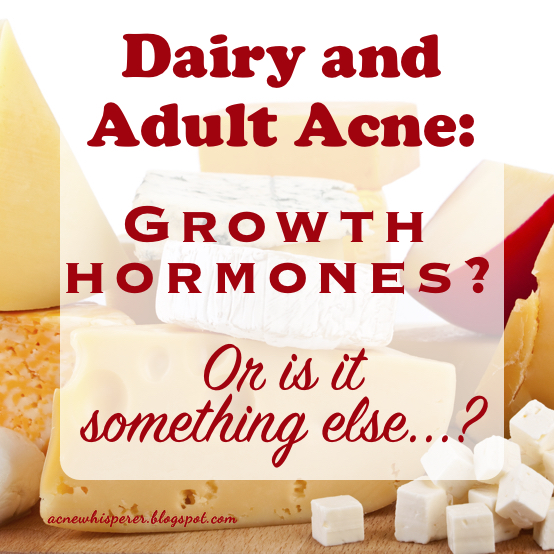 Adult Acne and cheese.  Iodine or growth hormones?
