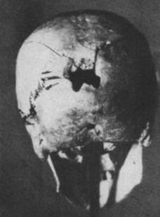 Cráneo agujereado. Katyn