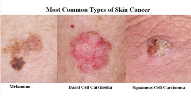 Best Hospitals For Cancer Treatment Skin Cancer Treatment In India