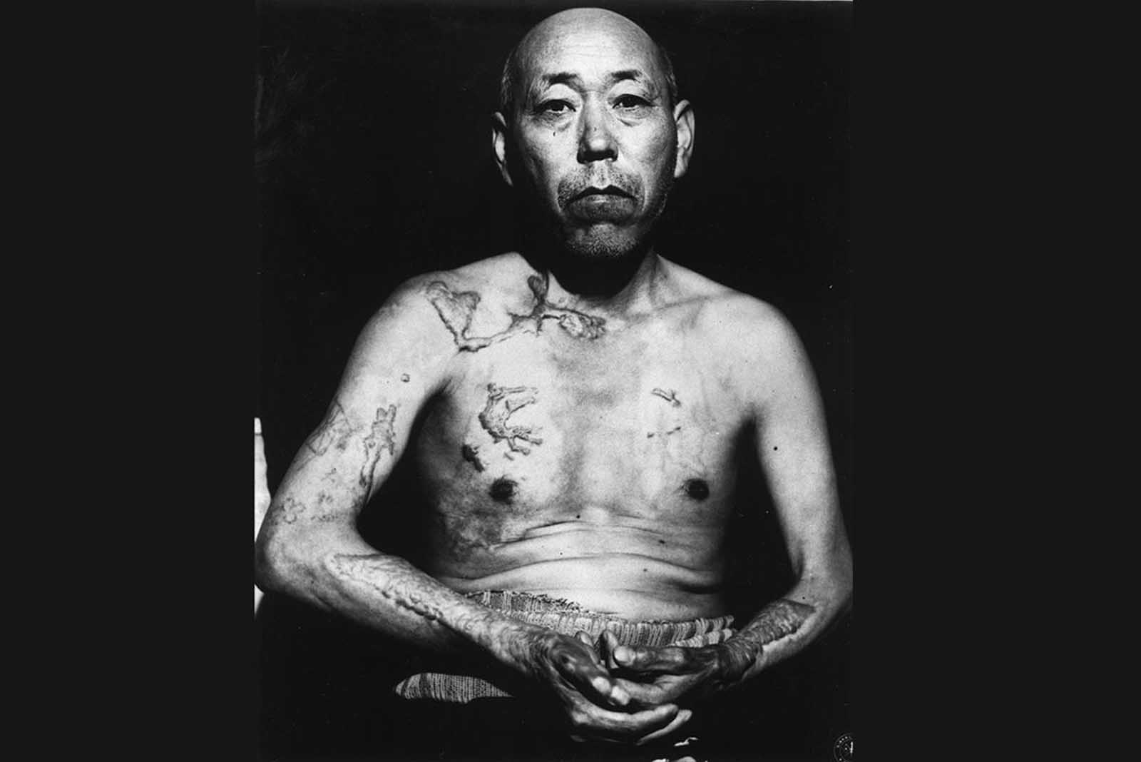 A survivor of the first atomic bomb ever used in warfare, Jinpe Teravama retains scars after the healing of burns from the bomb explosion, in Hiroshima, in June of 1947.