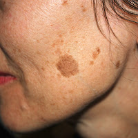 Altersflecken, Beauty Tipps, die Ursache von Altersflecken, Hautflecken