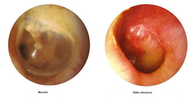 otitis eksterna pada telinga manusia