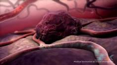 Cara Menangani Penderita Tumor
