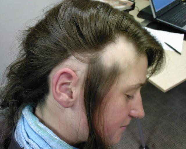 Cuidado: estilo man bun causa alopecia por tracción