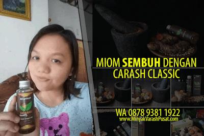 Manfaat Minyak Varash untuk Miom