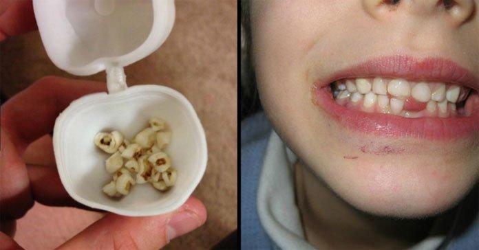 Doctors Urge Parents Not To Throw Children's Baby Teeth