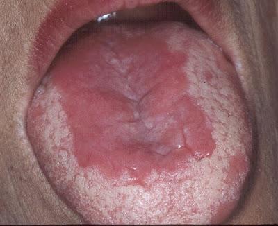 Chlamydia Anal Sex Missy stein spruter