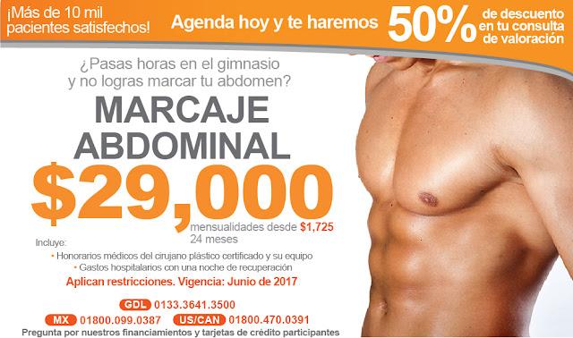 Precio Cirugia Marcar Abdomen Guadalajara