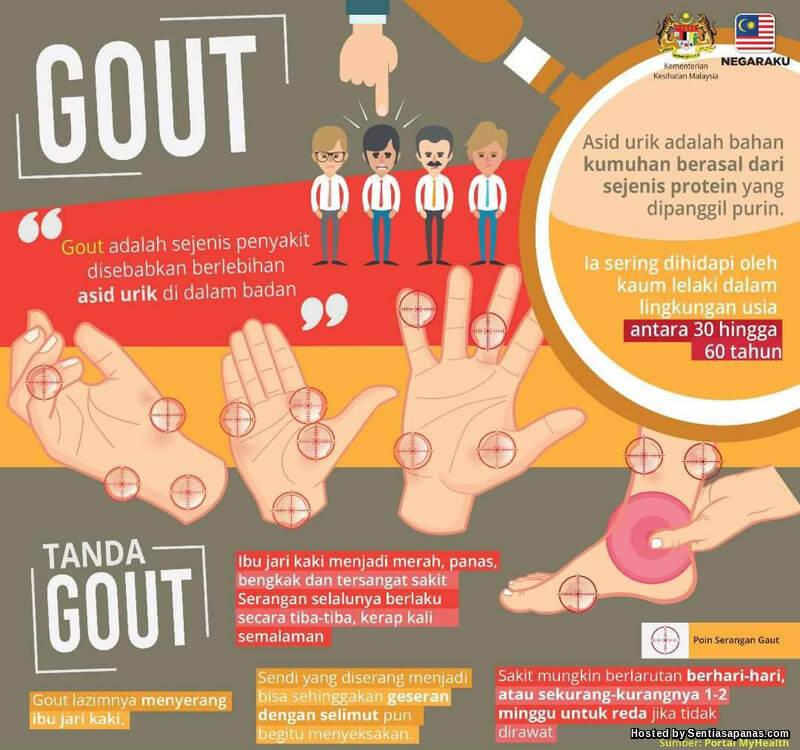Penawar Gout, Mudah Dan Murah