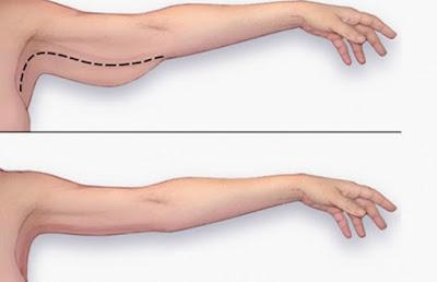 Tập yoga cho bắp tay thon gọn