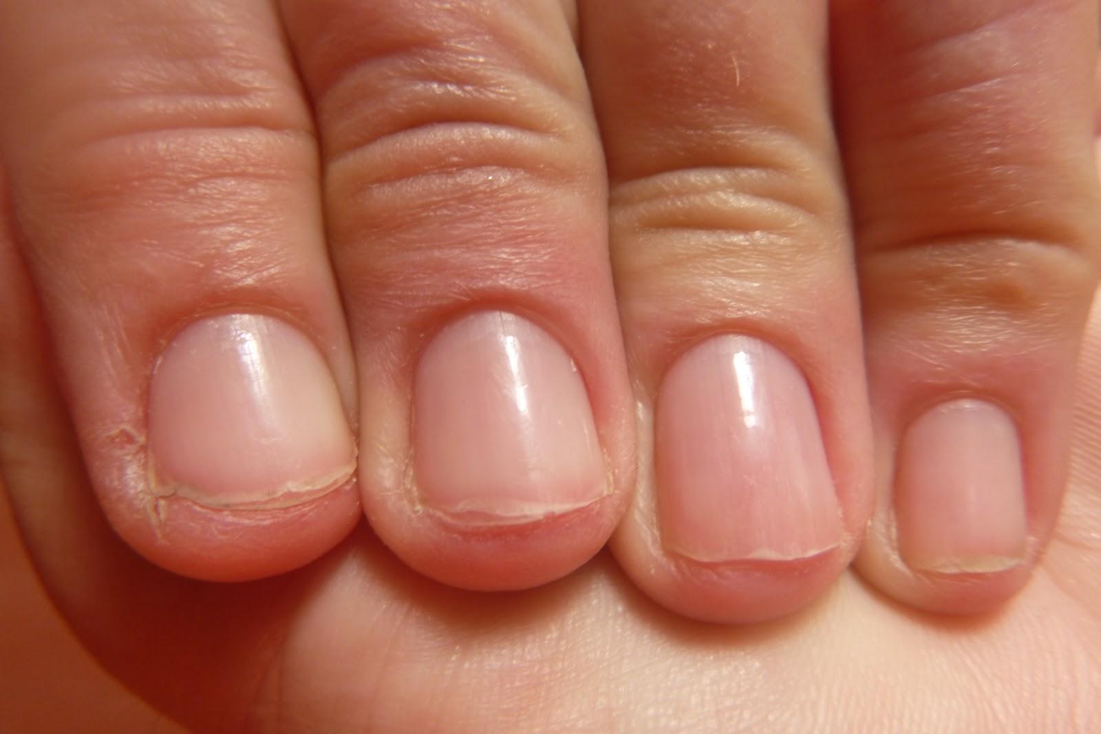 Splitting nails