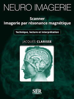 Neuro-Imagerie Scanner Imagerie Par Resonance Magnetique 32714419_784650788397003_2411240274001920000_n