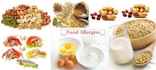remedios caseros para tratar alergias alimentarias