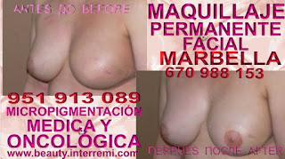 Cáncer de mamas Rellenos de la areola mamaria posteriormente de mastectomia