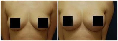 Before After Penggunaan Produk Pembesar Payudara Vienna Breast