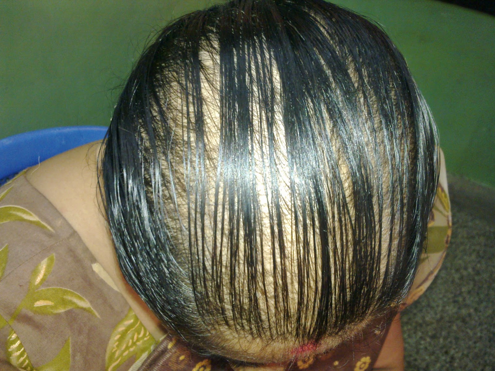 Female Pattern Baldness: Female pattern baldness (Alopecia in women; Baldness - female; Hair loss in women; Androgenic alopecia in women) involves a typical pattern of loss of hair in women, caused by hormones, aging, and genes.    Causes  • A hair grows from its follicle at an average rate of about 1/2 inch per month. Each hair grows for 2 to 6 years, then rests, and then falls out. A new hair soon begins growing in its place. At any time, about 85% of the hair is growing and 15% is resting.  • Baldness occurs when hair falls out but new hair does not grow in its place. The cause of the failure to grow new hair in female pattern baldness is not well understood, but it is associated with genetic predisposition, aging, and levels of endocrine hormones (particularly androgens, the male sex hormones).  • Changes in the levels of androgens can affect hair production. For example, after the hormonal changes of menopause , many women find that the hair on the head is thinned, while facial hair is coarser. Although new hair is not produced, follicles remain alive, suggesting the possibility of new hair growth.  • Female pattern baldness is usually different from that of male pattern baldness . The hair thins all over the head, but the frontal hairline is maintained. There may be a moderate loss of hair on the crown, but this rarely progresses to total or near baldness as it may in men.  Hair loss can occur in women for reasons other than female pattern baldness, including the following:  • Temporary shedding of hair (telogen effluvium) • Breaking of hair (from such things as styling treatments and twisting or pulling of hair) • Patchy areas of total hair loss (alopecia areata -- an immune disorder causing temporary hair loss) • Medications • Certain skin diseases • Hormonal abnormalities • Iron deficiency • Underactive thyroid • Vitamin deficiency  Symptoms Thinning of hair over the entire head • Hair loss at the crown or hairline, mild to moderate  Exams and Tests • Female pattern baldness is usually diagnosed based on the appearance and pattern of hair loss and by ruling out other causes of hair loss. • A skin biopsy or other procedures may be used to diagnose medical disorders that cause loss of hair. • Analysis of the hair itself is not accurate for diagnosing nutritional or similar causes of hair loss,    Treatment for Female pattern baldness Symptomatic Homeopathy medicines act well for Female Pattern baldness   Whom to contact for Female pattern Baldness – FPB Treatment  Dr.Senthil Kumar Treats many cases of Female pattern Baldness – FPB, In his medical professional experience with successful results. Many patients get relief after taking treatment from Dr.Senthil Kumar.  Dr.Senthil Kumar visits Chennai at Vivekanantha Homeopathy Clinic, Velachery, Chennai 42. To get appointment please call 9786901830, +91 94430 54168 or mail to consult.ur.dr@gmail.com,    For more details & Consultation Feel free to contact us. Vivekanantha Clinic Consultation Champers at Chennai:- 9786901830  Panruti:- 9443054168  Pondicherry:- 9865212055 (Camp) Mail : consult.ur.dr@gmail.com, homoeokumar@gmail.com   For appointment please Call us or Mail Us  For appointment: SMS your Name -Age – Mobile Number - Problem in Single word - date and day - Place of appointment (Eg: Rajini – 30 - 99xxxxxxx0 – Female pattern Baldness – FPB – 21st Oct, Sunday - Chennai ), You will receive Appointment details through SMS.