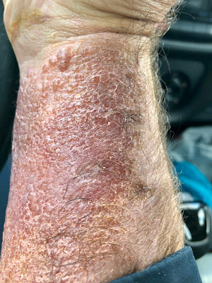 rash from poison sumac