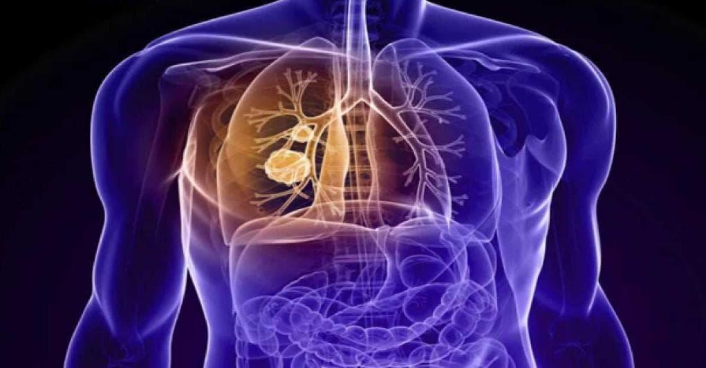 Asbestos Cancer Mesothelioma Symptoms