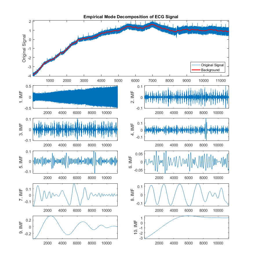 a real time qrs detection algorithm Comparison of low-complexity algorithms for real-time qrs detection using standard ecg database today, thanks to the development of advanced wearable devices, it is possible to track patient conditions outside hospital setting for several days.