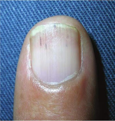 Splinter hemorrhages appearing as red linear streaks under the nail plate and within the nail bed.