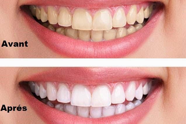 Retrouvez des dents blanches rapidement grâce à cette méthode