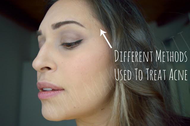Different Methods Used To Treat Acne