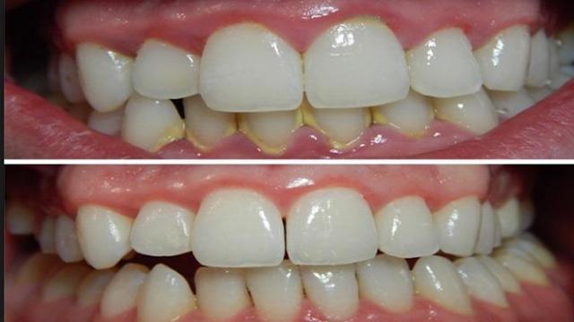 كيفية تبيض الاسنان وازالة الجير عند الطبيب وفي المنزل