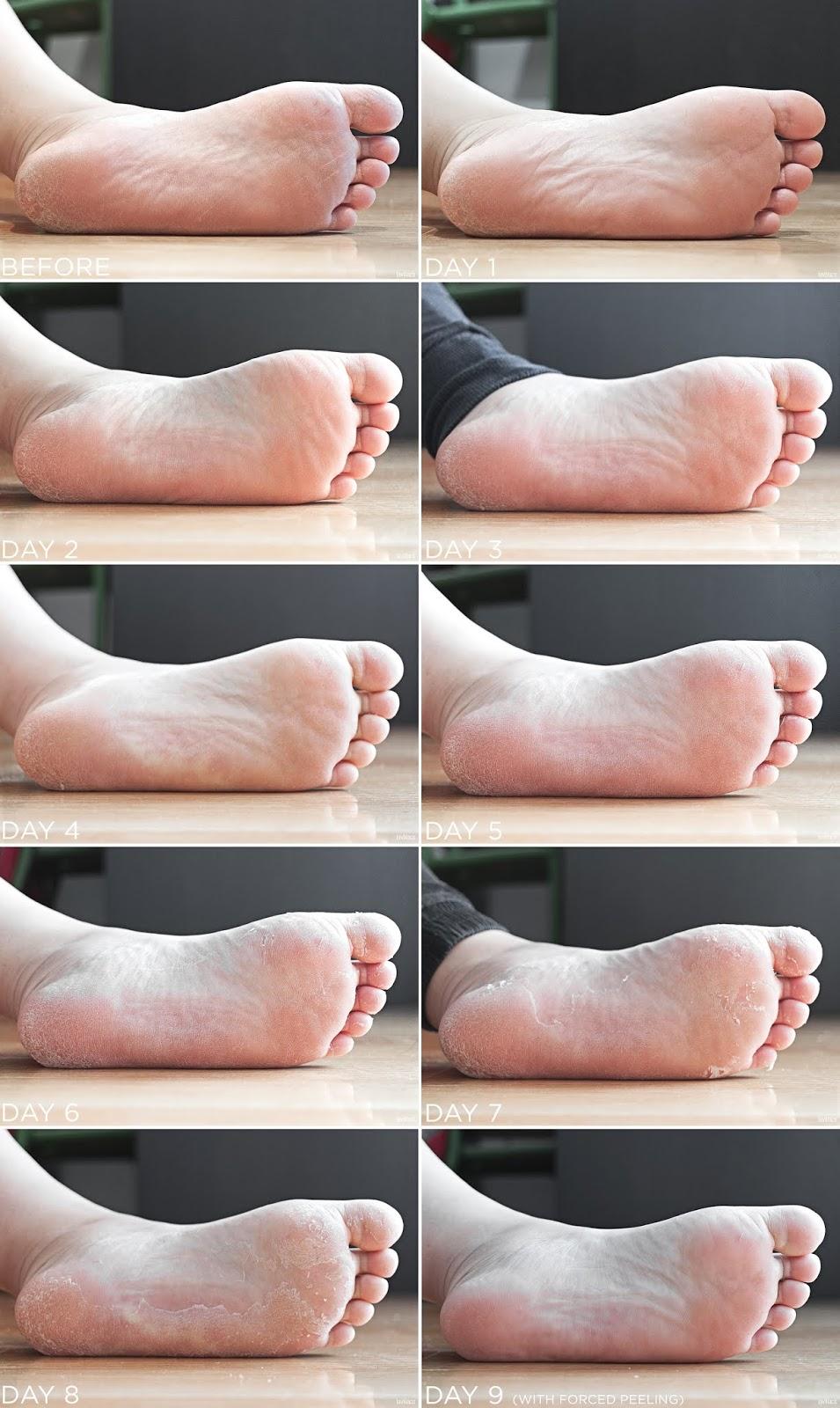 lavlilacs the SAEM Dear My Foot Power Peeling progression of peeling