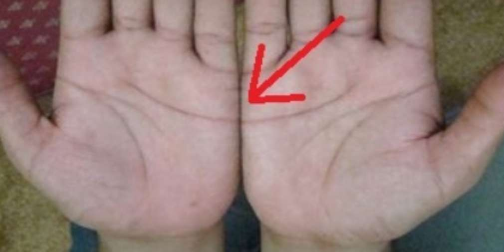 Put Your Palms Side By Side And See If Your Heart Lines Agree, Here's What It Means