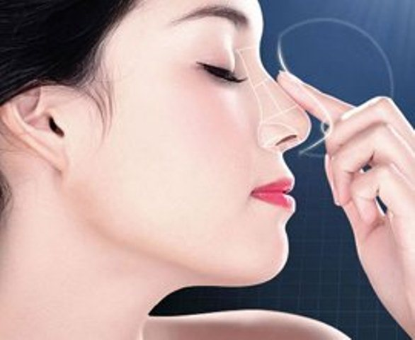 4 Phương pháp thẩm mỹ nâng mũi phổ biến hiện nay
