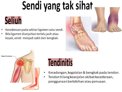 Image result for ostematrix sahabat sendi