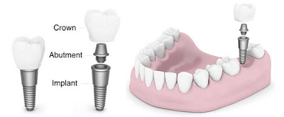 http://chennaidentalimplantsclinic.com/one-hour-dental-implants/