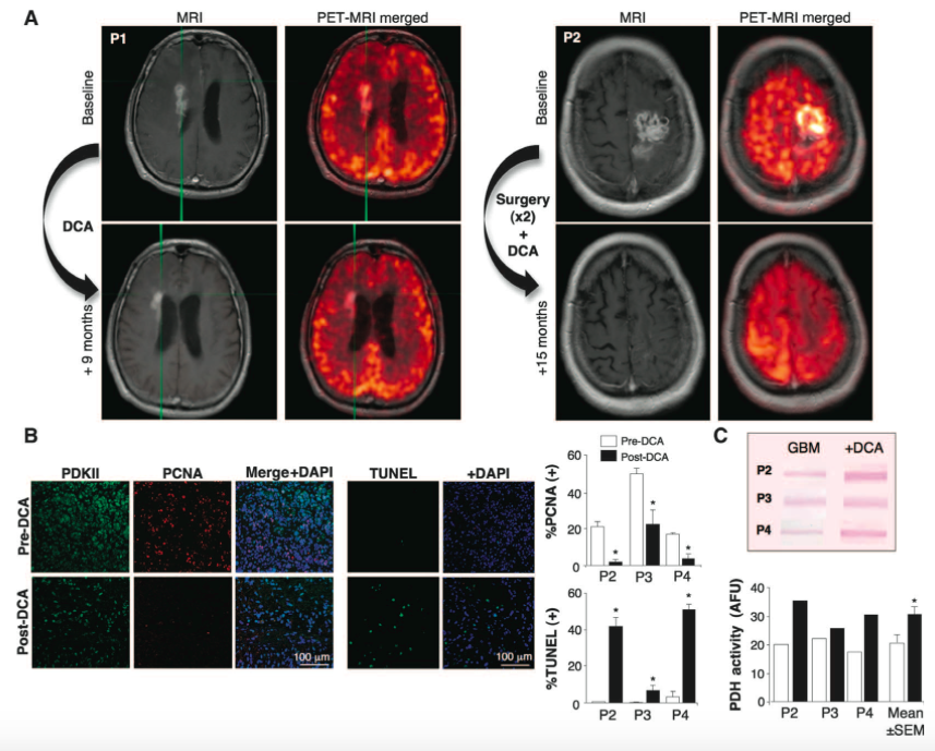 Metabolic modulation of glioblastoma with dichloroacetate