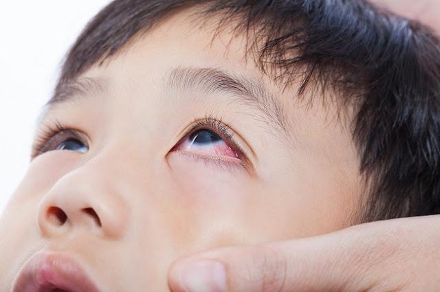 Cara Mengatasi Mata Merah Lebih Cepat dan Tepat