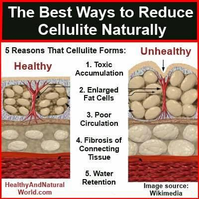 hover_share weight loss - best ways to reduce cellulite naturally