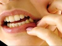 Tips Cara Mencegah Gigi Berlubang Yang Baik dan Benar
