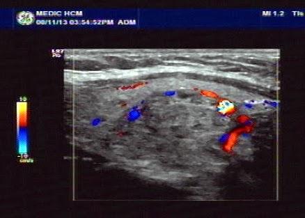 Vietnamese Medic Ultrasound Case 217 Thyroid Tumor Dr Phan