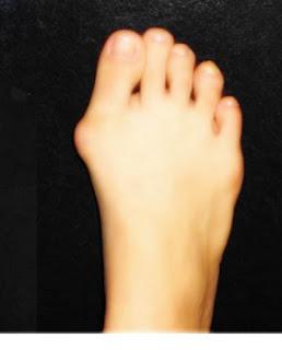 pareri monturile la picioare remedii tratament fara operatie