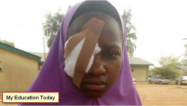 Teacher who Injured Student's Eye Gets Jail Term