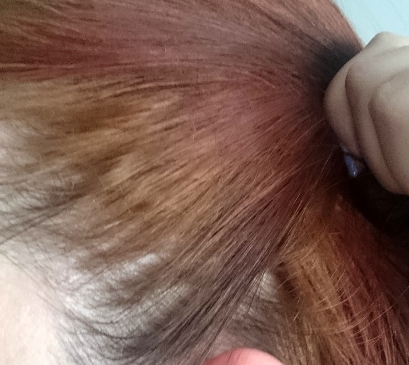 Haare orange und fleckig